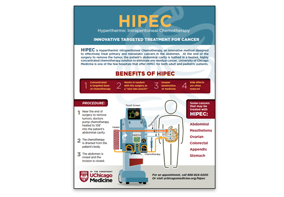 HIPEC, hyperthermic intraperitoneal chemotherapy infographic
