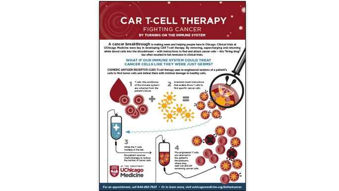 CAR T-cell therapy infographic