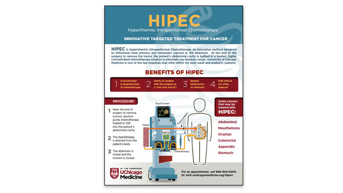 HIPEC Infographic