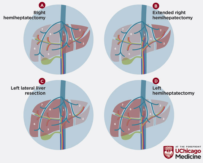 illustration of types of hepatobiliary tumor surgery