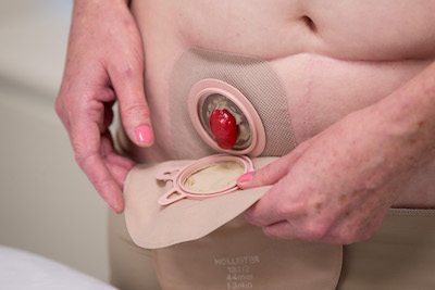 An ostomy patient with a two-piece ostomy bag and pouching system