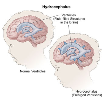 hydrocephalus diagram