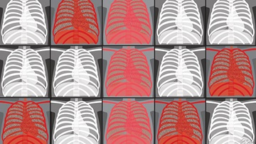 Lung x-ray graphic