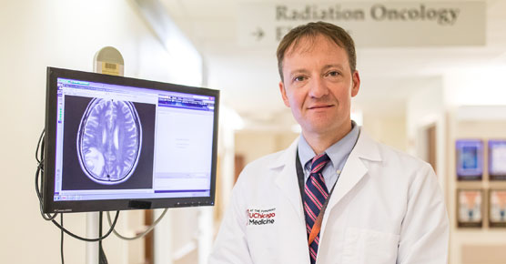 Steven Chmura, MD with brain scan
