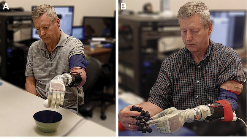 Man using a neuroprosthetic hand.