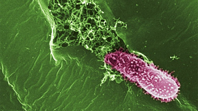 A Pseudomonas bacteria entering a plant leaf. Image courtesy of the Max Planck Institute for Developmental Biology