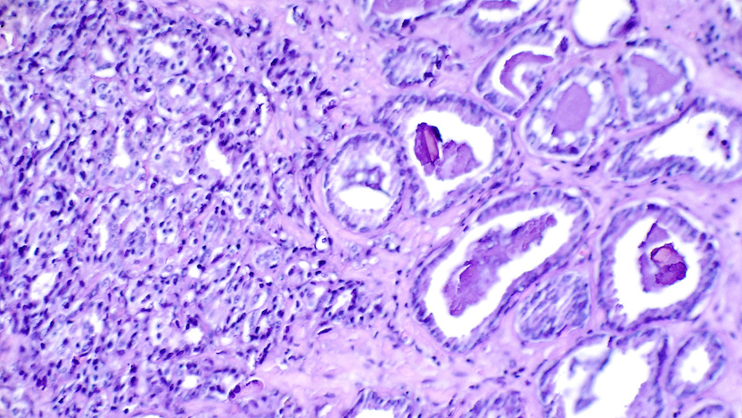 Histological slide showing prostate cancer