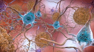 Beta amyloid plaques in the brain