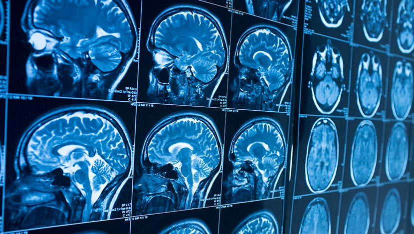 MRI brain scans viewed on screen