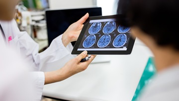 A physician reviews a tablet with images of a brain scan.