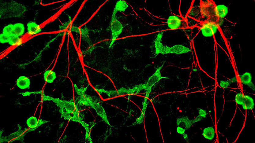 Microglia and neurons