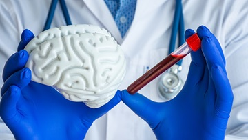 Doctor holding a model of the brain