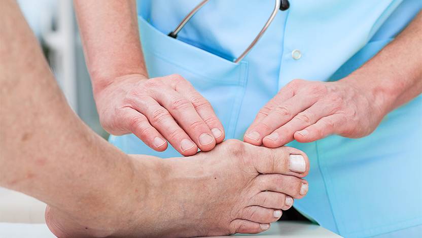 doctor reviews a bunion