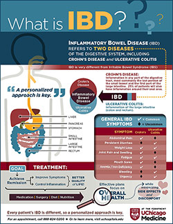 IBD inforgraphic explaining difference between Crohns and ulcerative colitis