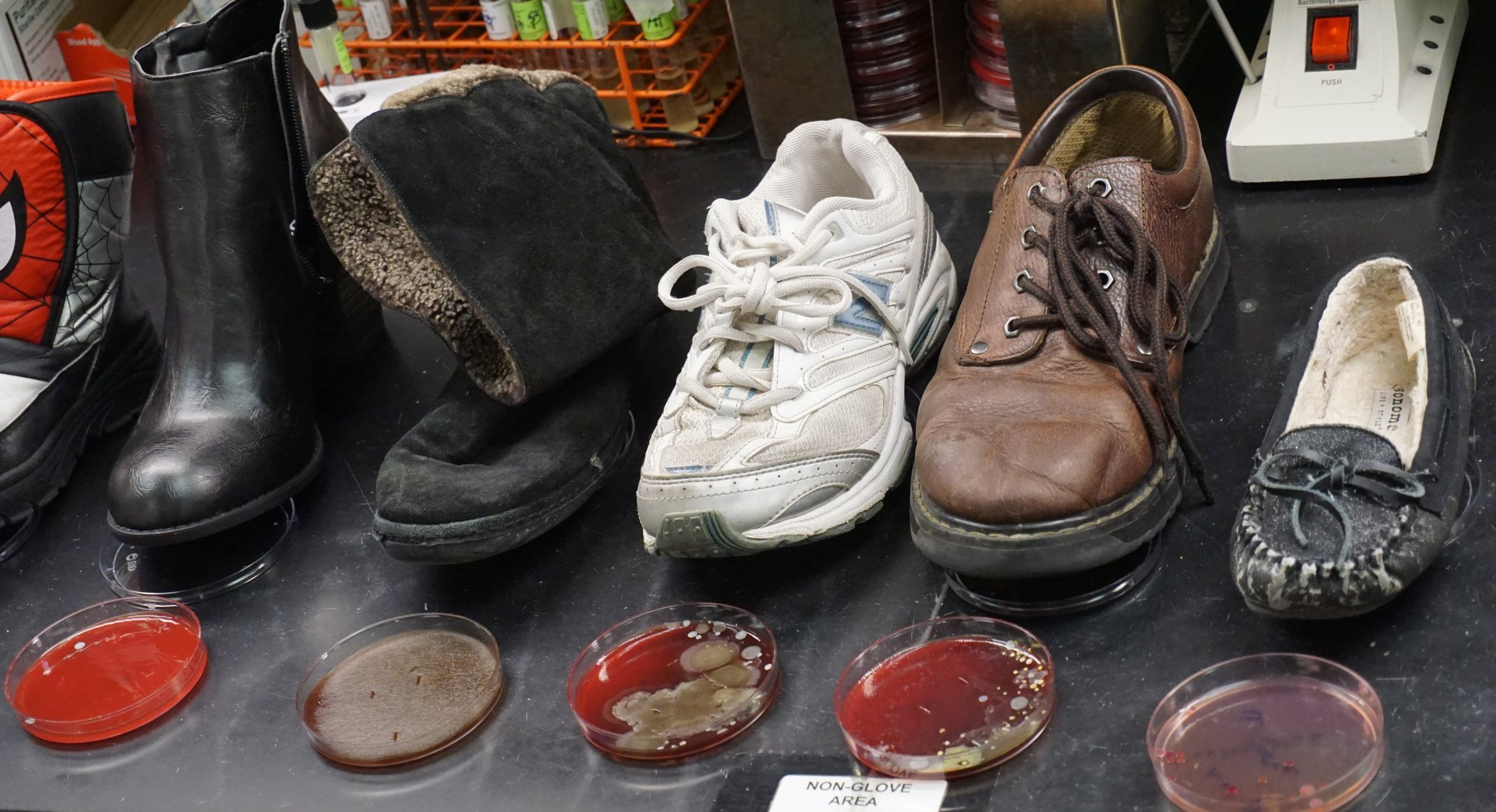 germ cultures from shoes