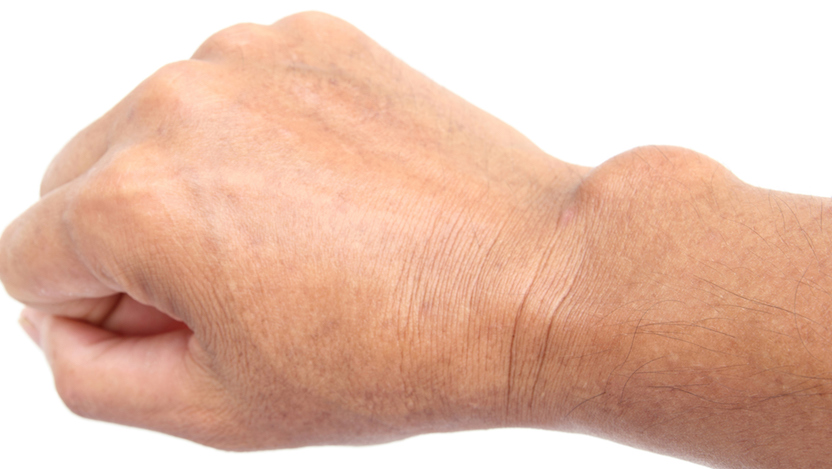 A ganglion cyst on a wrist