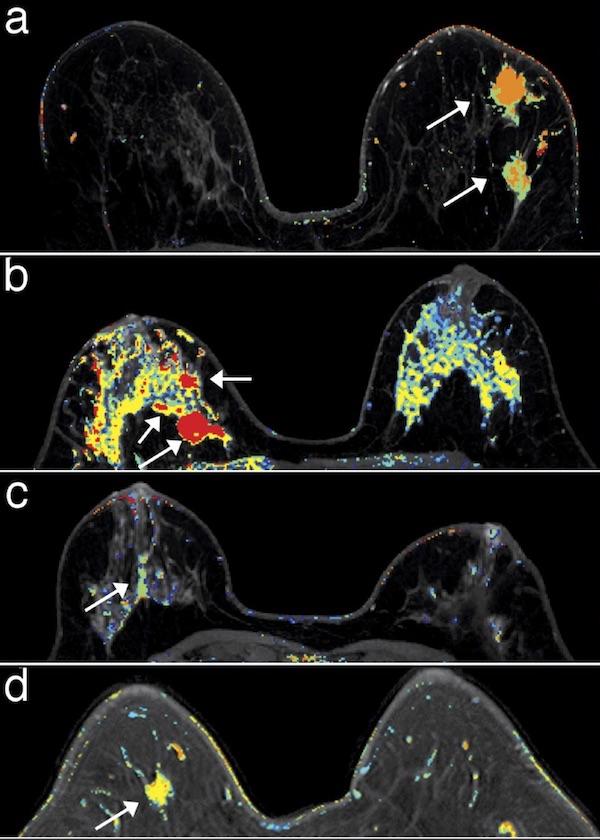 Perfecting Mri As A Breast Cancer Screening Tool Uchicago Medicine