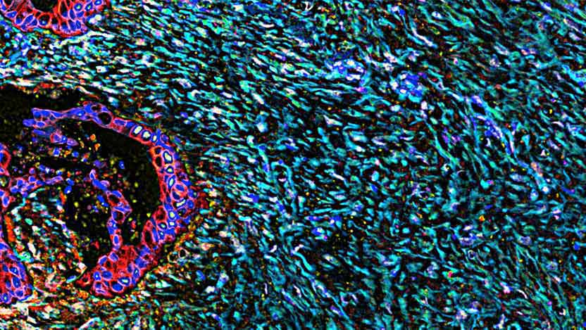 Pancreatic cancer causes the connective tissue around the tumor to thicken and scar. Cancerous cells are in red; nuclei are in blue; Fibrous connective tissue is in cyan. (Credit: Fox Chase Cancer Center, National Cancer Institute, National Institutes of Health)