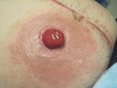 Stoma Bleeding And Irritation Ostomy Bag Leaking Uchicago Medicine