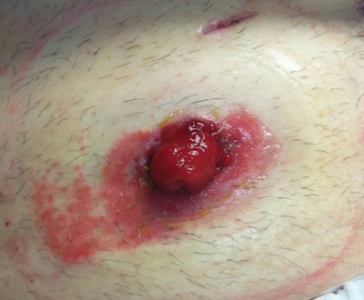 A picture of skin damage around the peristomal skin due to an incorrect bag pouching system fit