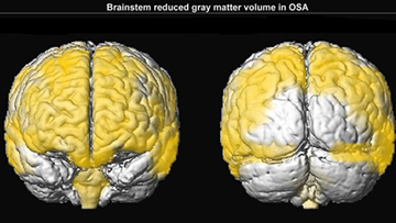 mri-reduced-gray-matter-horizontal feed