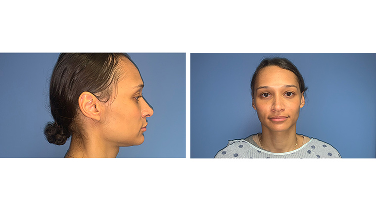Post-op photo of a female patient who underwent a parotidectomy