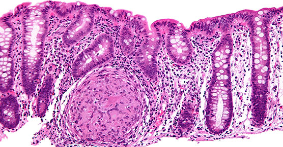 High magnification micrograph of Crohn