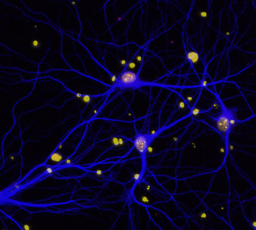 Neurons in the brain of a mouse with Alzheimer