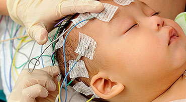 Gloved hands placing EEG electrodes on sleeping baby
